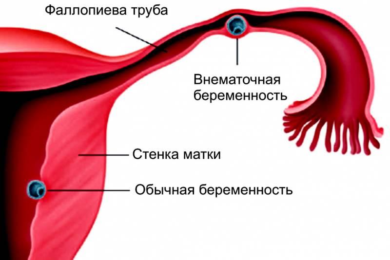 vnematochnaya-beremennost1